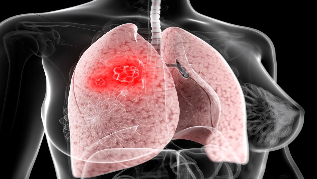 تدمير الرئتين بسبب سرطان الرئة