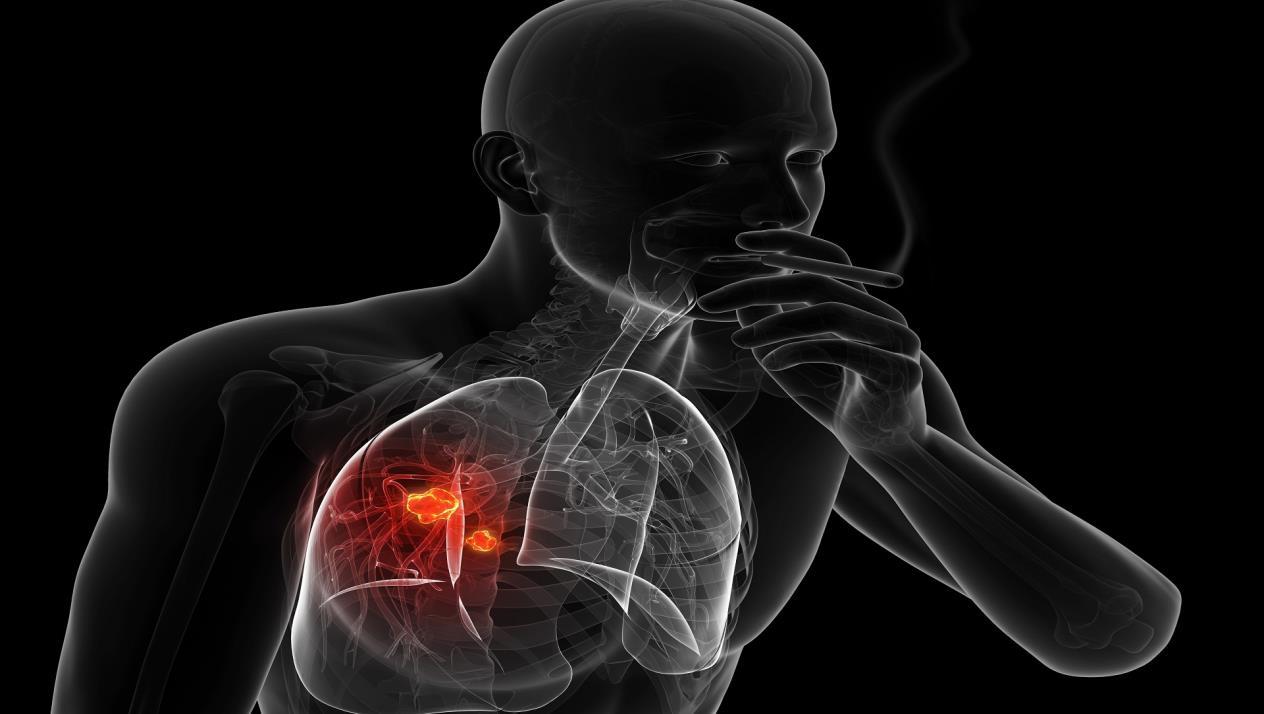 سرطان الرئة والتدخين