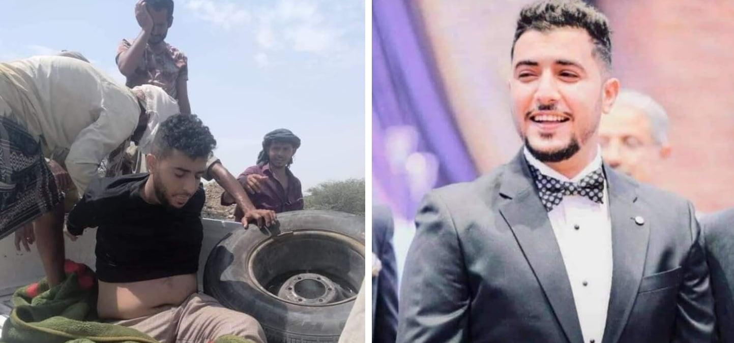 تسريب صور جديدة للشاب المغدور عبدالملك السنباني الذي قتلته ميليشيا الإمارات (شاهد)