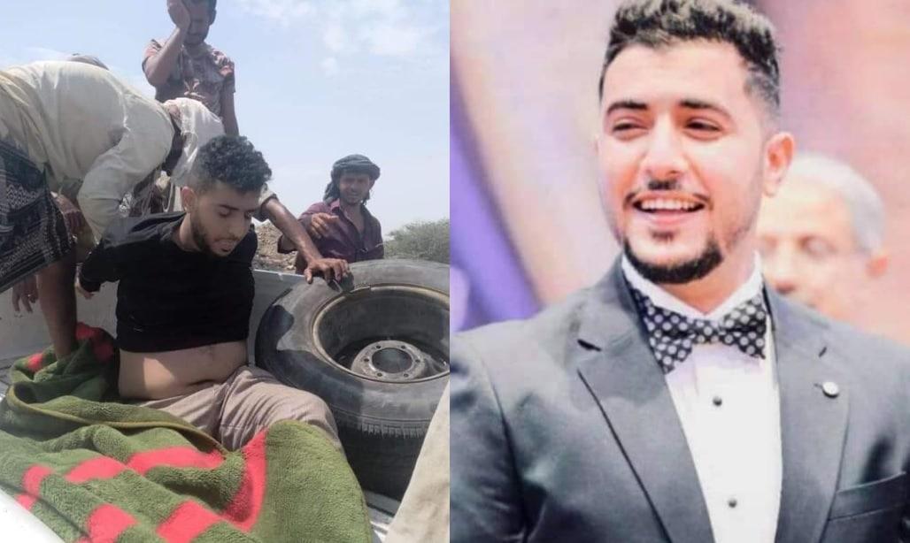 ميليشيا الإمارات تقتل الشاب عبدالملك السنباني .. صدمة في اليمن بعد الجريمة البشعة (شاهد)